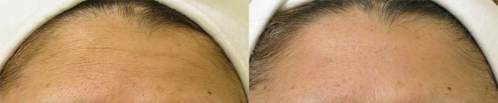 hydrafacial-before-after-2