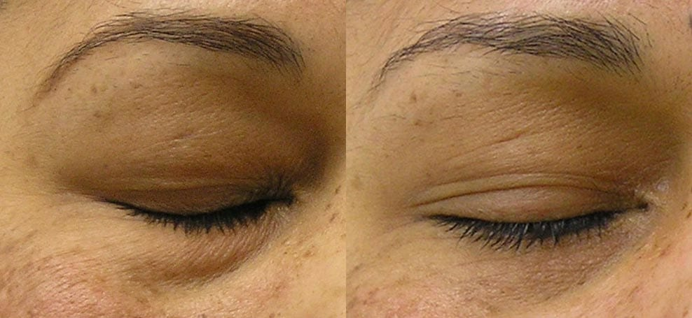 hydrafacial-before-after-1